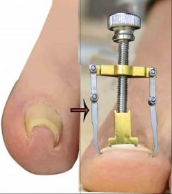 নখের কোনা সোজা করার অত্যাধুনিক যন্ত্র ( Nail Repair